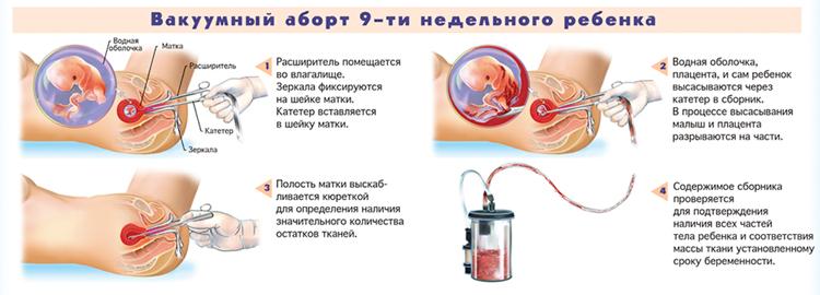 1333719617_abort9sm